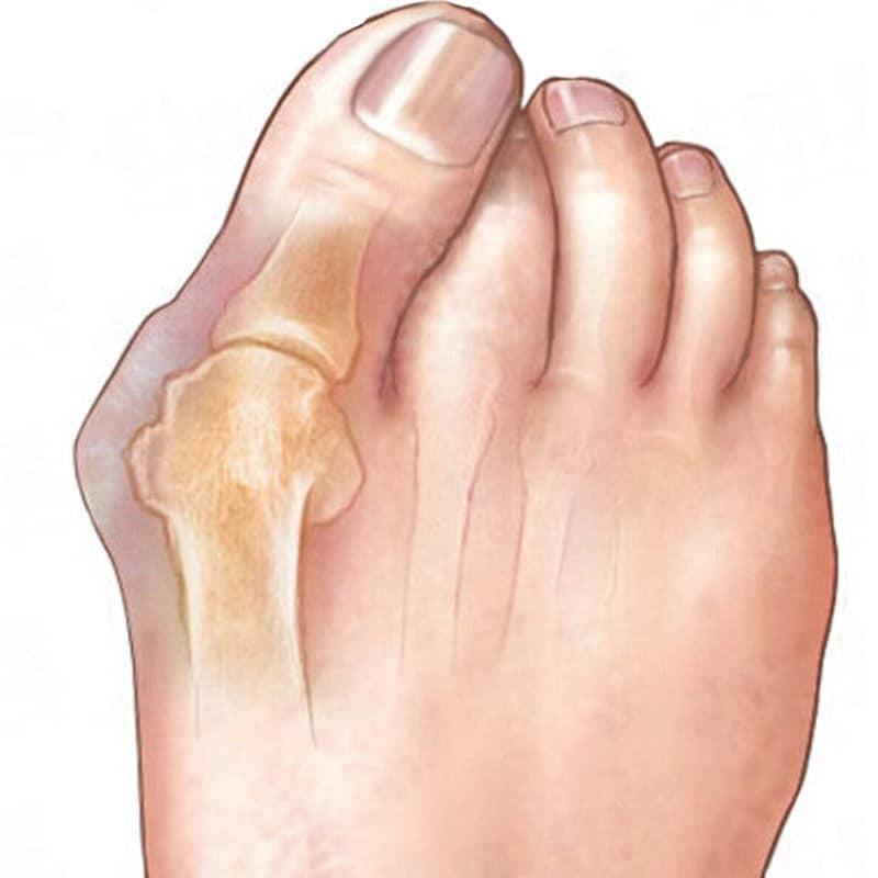 2คู่Hallux Valgus Corrector Bone Thumb Orthotic OrthopedicซิลิโคนBig Toe Separator Bunion Corrector Pedicure Foot Care Tool