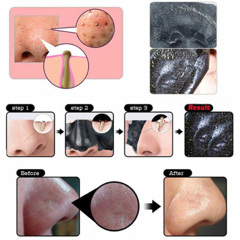 5 stücke Schwarz Masken Deep Cleansing Reinigungs Abziehen Schwarz Kopf Maske, Schließen Poren, gesicht Maske Mitesser Entferner Poren Streifen Gesicht Pflege