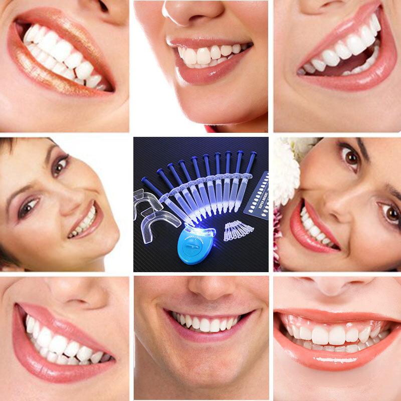 Hot Dentista Sbiancamento Dei Denti 44% di Perossido di Sistema di Sbiancamento Dentale Gel Orale Kit di sbiancamento Dei Denti Dentale Strumenti