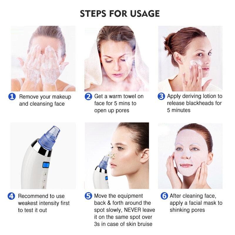 Hautpflege Poren Vakuum Mitesser Entferner Akne Pickel Entfernung Vakuum Saug Werkzeug Gesicht Sauber Gesichts Diamant Dermabrasion Maschine