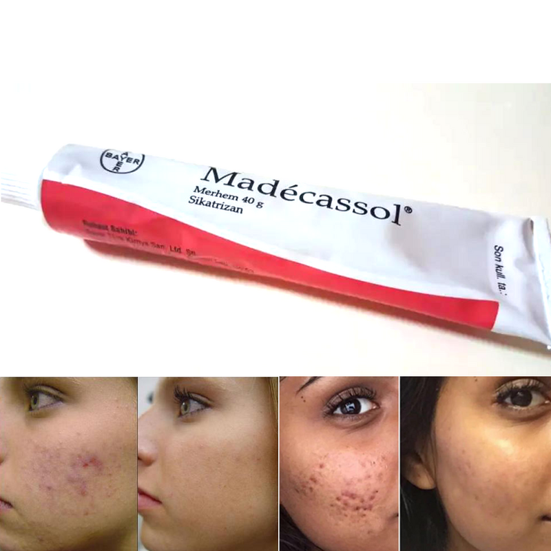 Madecassol 40 g creme magische wirkung Sikatrizan balsam Centella asiatica mobile regenerator akne akne verletzungen wunde haut yenilem